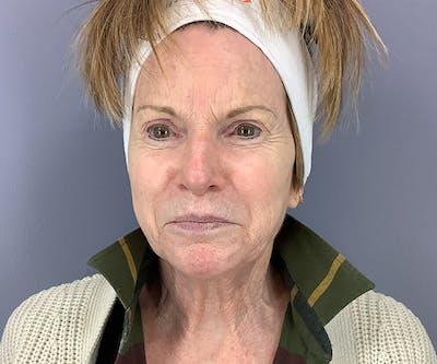 Morpheus8 Treatment Gallery - Patient 25852481 - Image 1