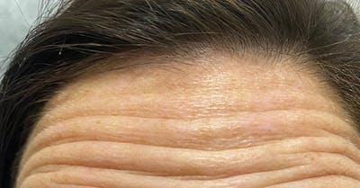 Wrinkle Relaxers Gallery - Patient 31159355 - Image 1