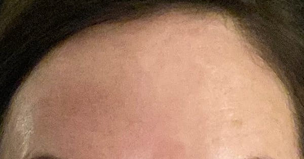 Wrinkle Relaxers Gallery - Patient 31159355 - Image 2
