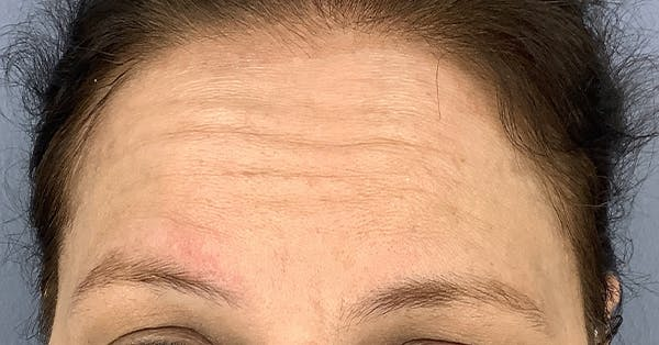 Wrinkle Relaxers Gallery - Patient 40307377 - Image 1