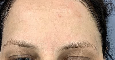 Wrinkle Relaxers Gallery - Patient 40307377 - Image 2