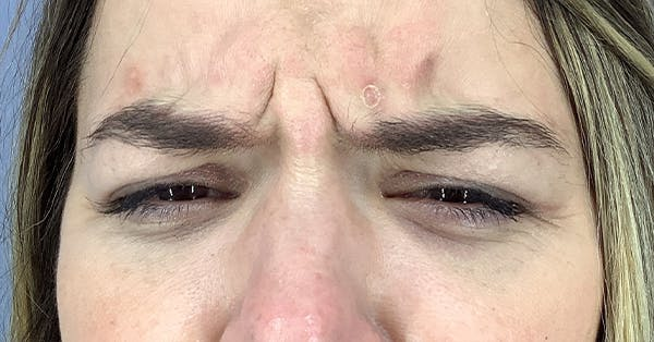 Wrinkle Relaxers Gallery - Patient 40307395 - Image 1