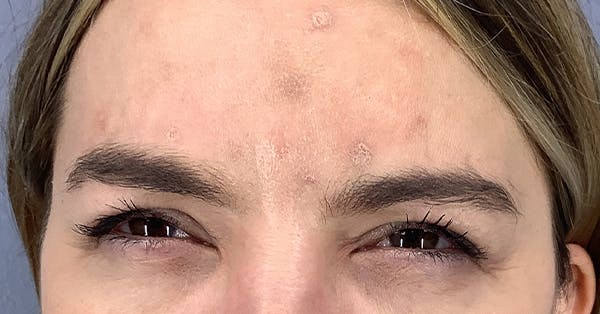 Wrinkle Relaxers Gallery - Patient 40307395 - Image 2