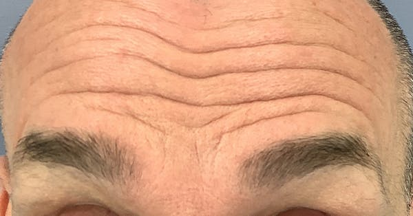 Wrinkle Relaxers Gallery - Patient 40307420 - Image 1