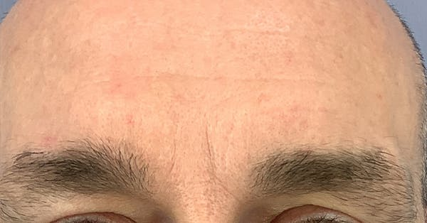 Wrinkle Relaxers Gallery - Patient 40307420 - Image 2