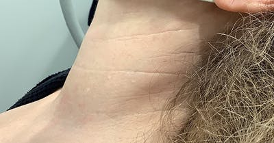 Thread Lift Gallery - Patient 40314371 - Image 1