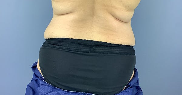 Coolsculpting/CoolTone Gallery - Patient 40314819 - Image 1