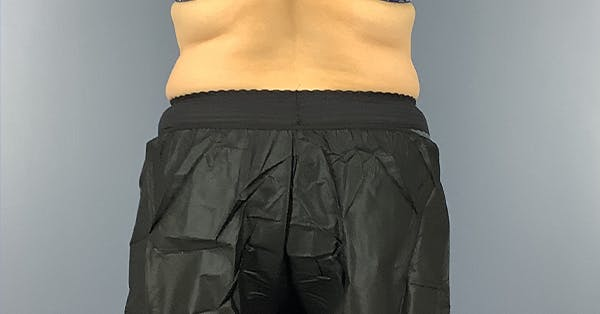 Coolsculpting/CoolTone Gallery - Patient 40314819 - Image 2