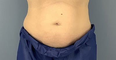 Coolsculpting/CoolTone Gallery - Patient 40314828 - Image 1