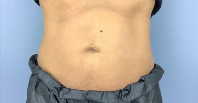 Coolsculpting/CoolTone Gallery - Patient 40314828 - Image 2
