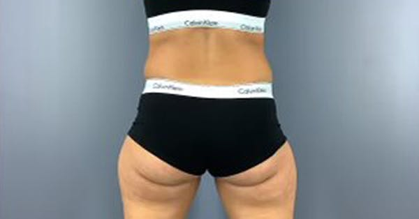 Coolsculpting/CoolTone Gallery - Patient 45669341 - Image 3