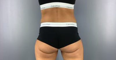 Coolsculpting/CoolTone Gallery - Patient 45669341 - Image 4