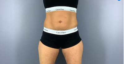 Coolsculpting/CoolTone Gallery - Patient 45669341 - Image 5
