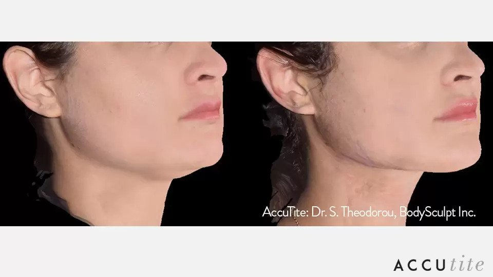 AccuTite before and after photo #1