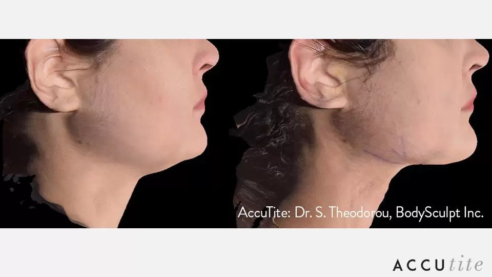 AccuTite before and after photo #2