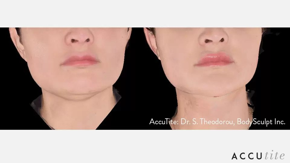AccuTite before and after photo #3