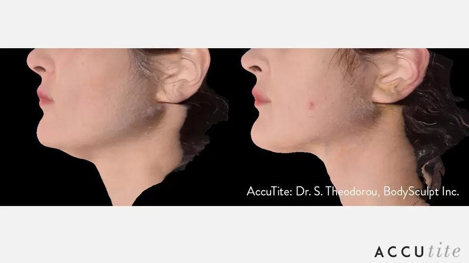 AccuTite before and after photo #4
