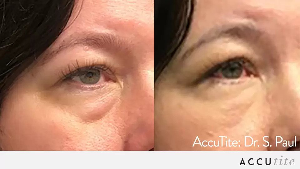 AccuTite before and after photo #5