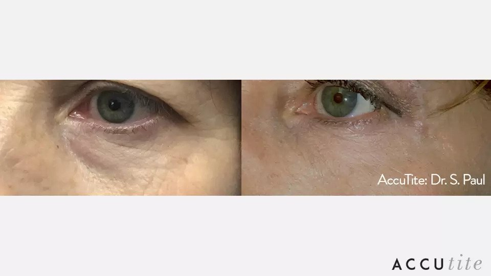 AccuTite before and after photo #6