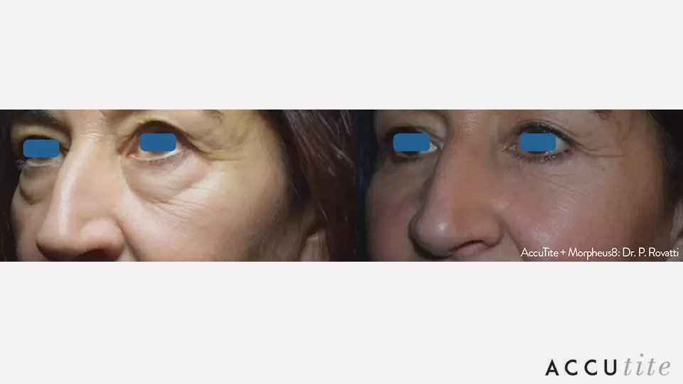 AccuTite before and after photo #7
