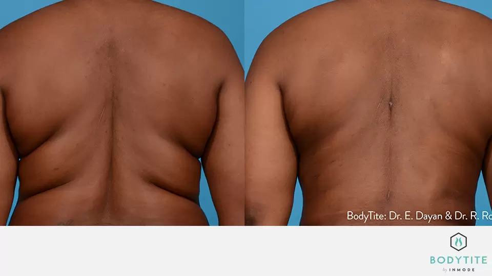 BodyTite before and after photo #2