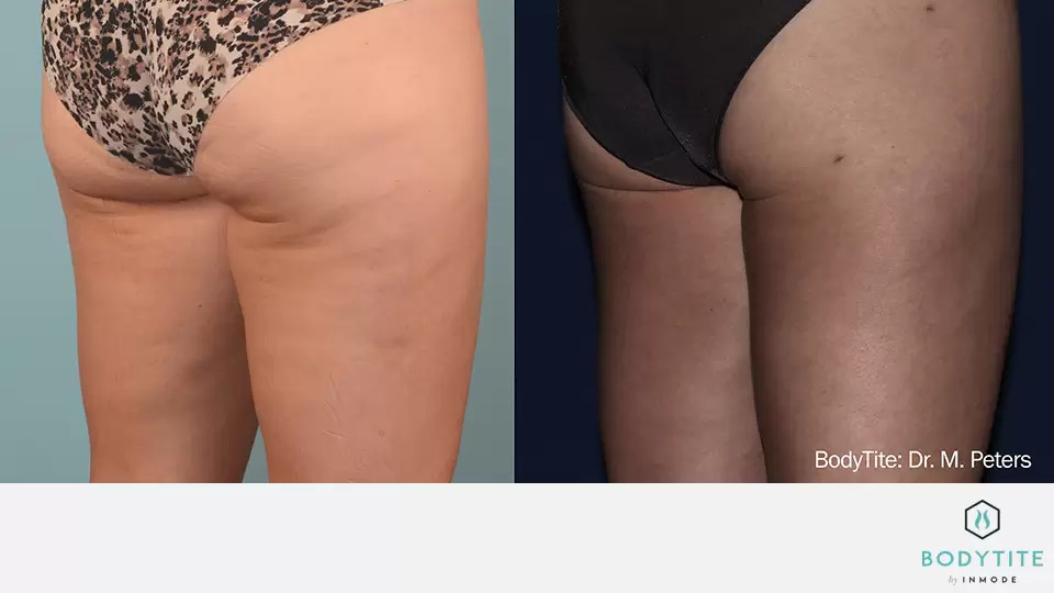 BodyTite before and after photo #9