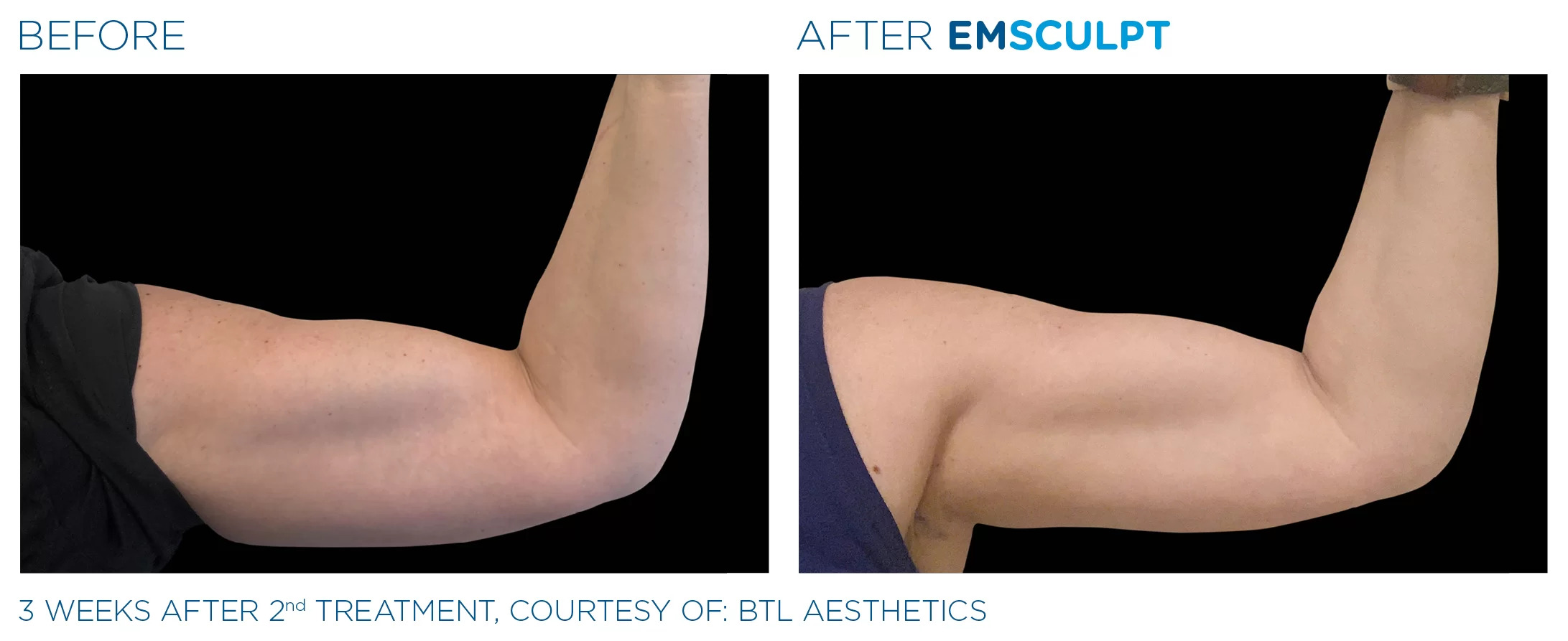 EmSculpt before and after photo #2