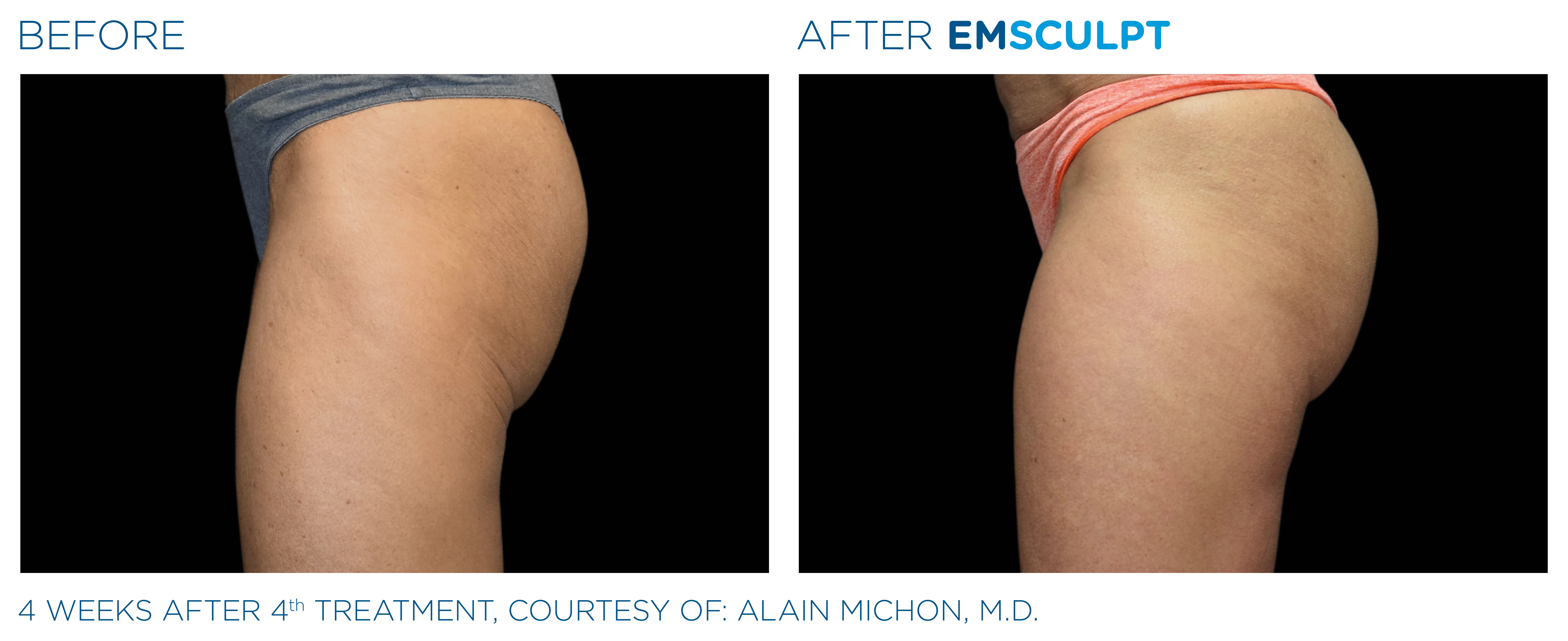 EmSculpt before and after photo #3