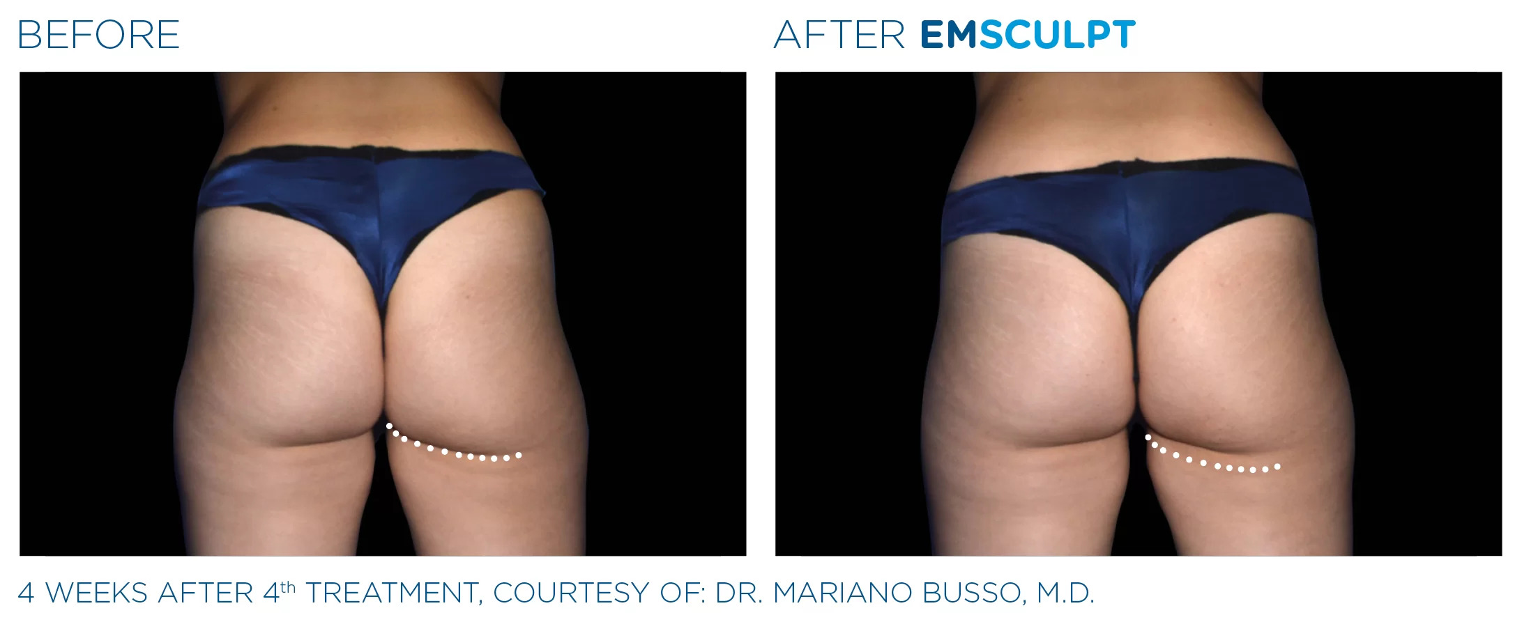 EmSculpt before and after photo #4
