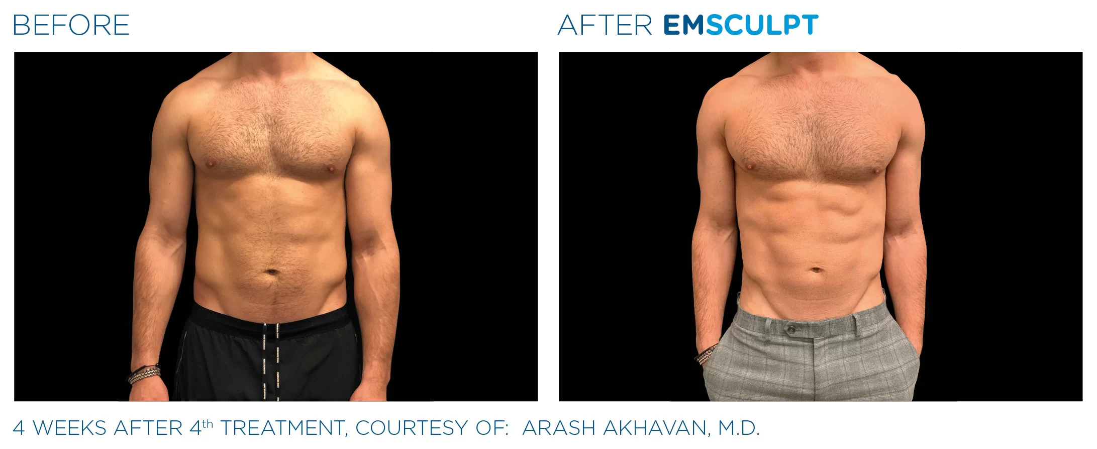 EmSculpt before and after photo #5