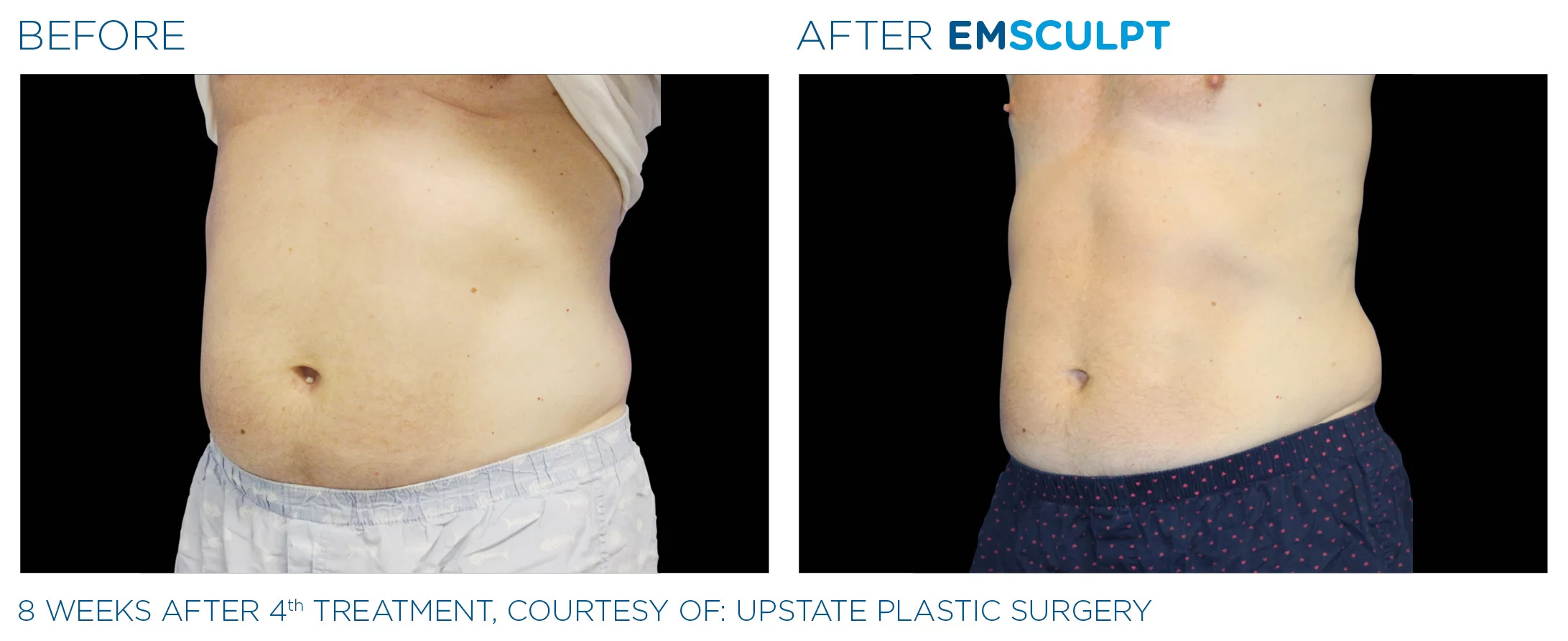 EmSculpt before and after photo #6