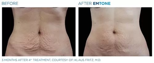 Emtone before and after photo #1