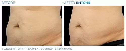 Emtone before and after photo #2