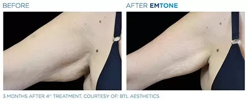 Emtone before and after photo #3