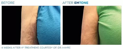 Emtone before and after photo #4