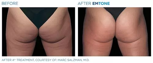 Emtone before and after photo #5