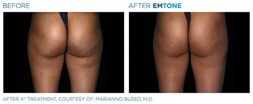 Emtone before and after photo #6
