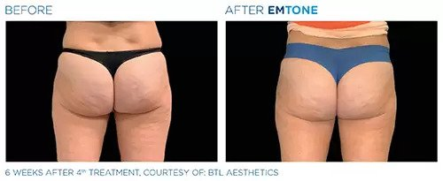 Emtone before and after photo #7