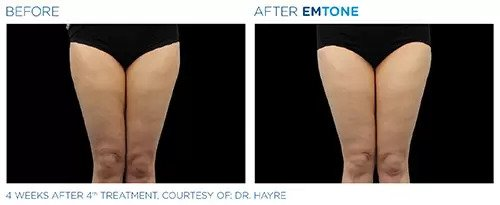 Emtone before and after photo #8