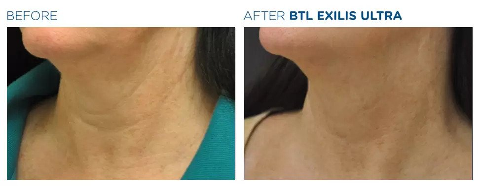 Exilis Ultra before and after photo #1