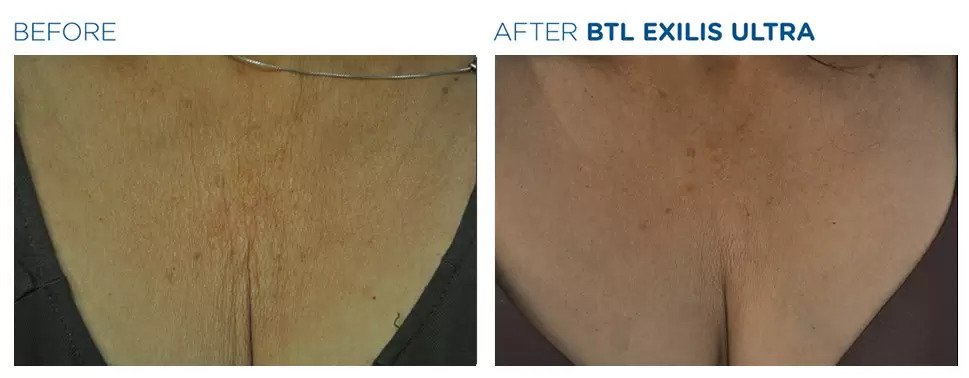 Exilis Ultra before and after photo #2