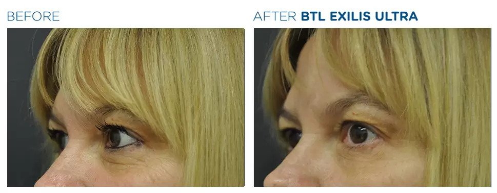 Exilis Ultra before and after photo #3
