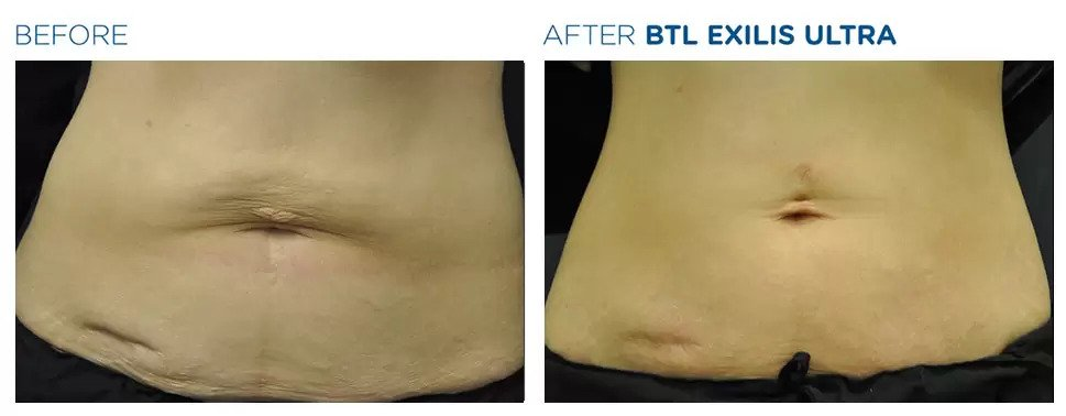 Exilis Ultra before and after photo #4