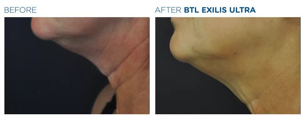 Exilis Ultra before and after photo #5