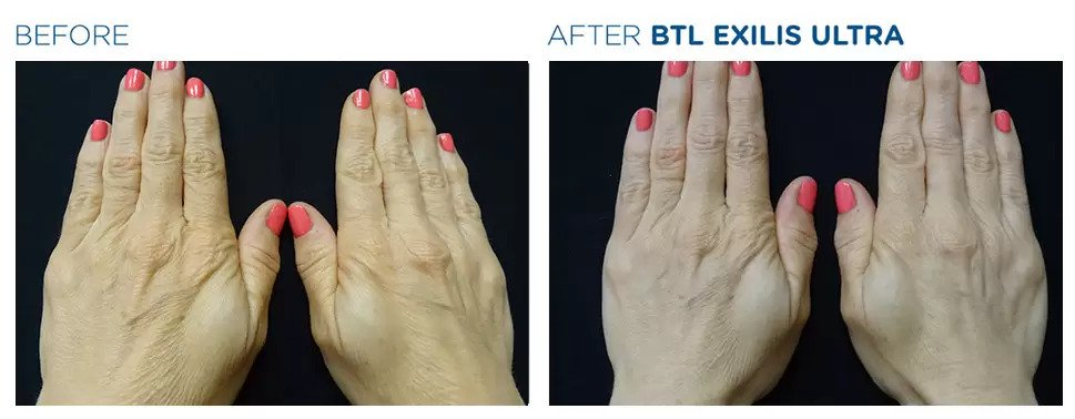 Exilis Ultra before and after photo #6