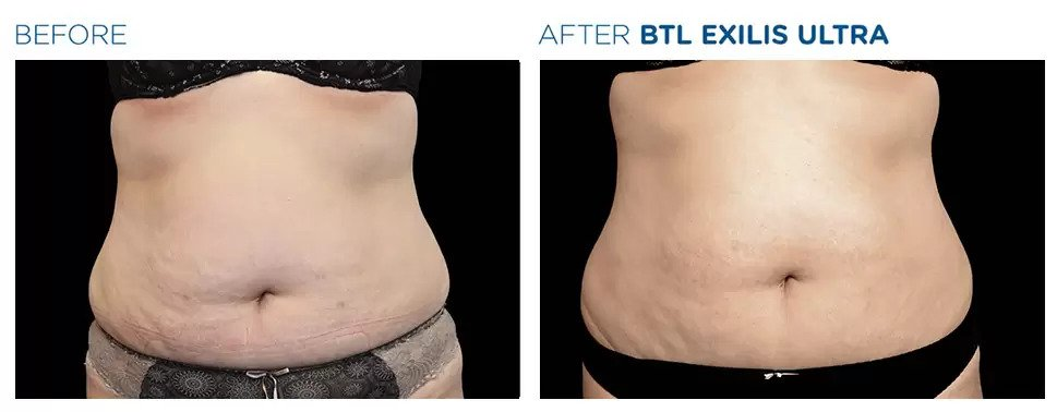 Exilis Ultra before and after photo #7
