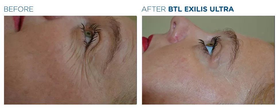 Exilis Ultra before and after photo #8