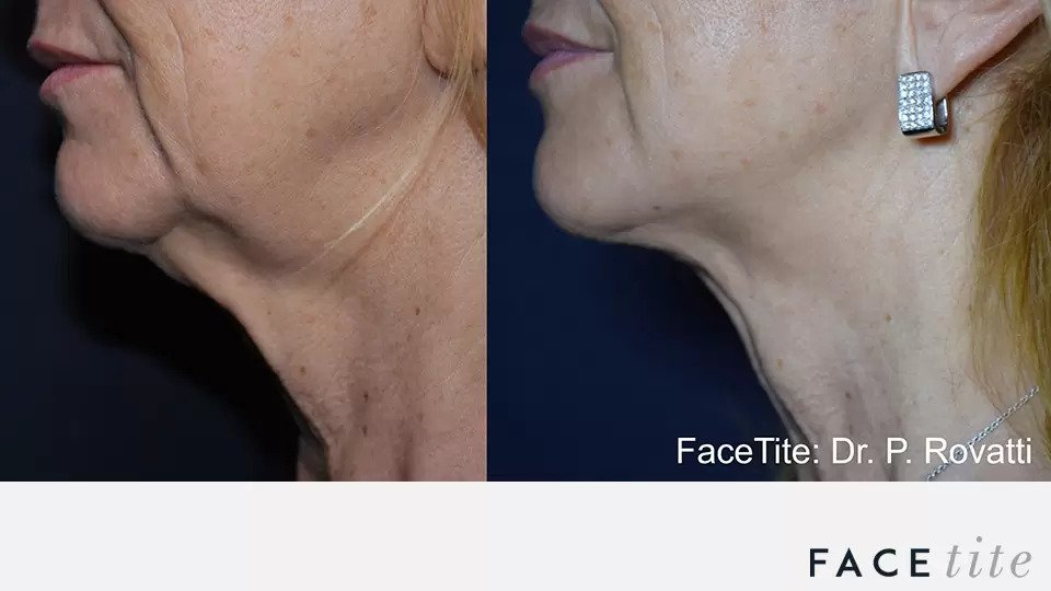 FaceTite before and after photo #3