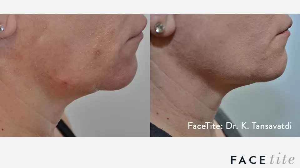 FaceTite before and after photo #5