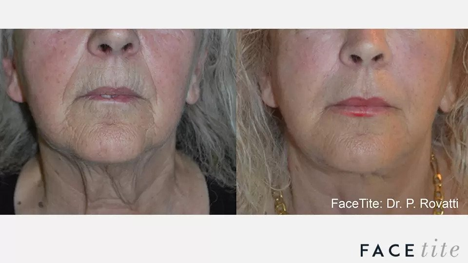 FaceTite before and after photo #8